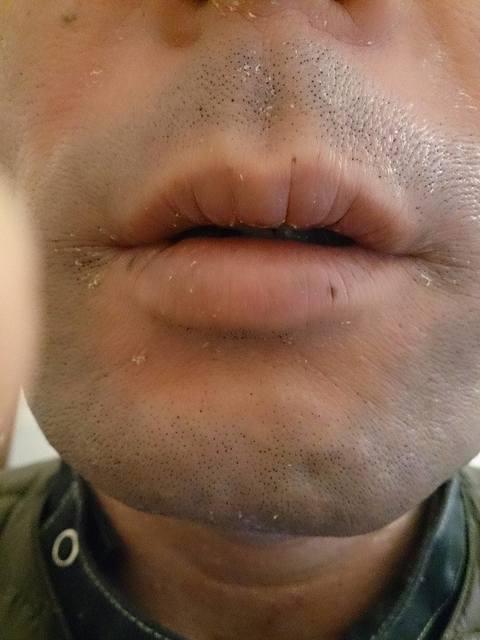 161217唇.jpg